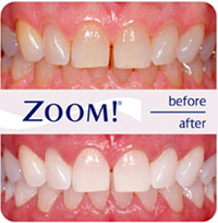 zoom-before-after-2